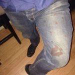 Tifozët Kuq e Zi denoncojnë dhunën policore: Jemi tërhequr zvarrë në rrugët e Tiranës (FOTO)