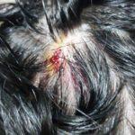 Gjirokastër, goditet bashkëshortja e gazetarit Telnis Skuqi