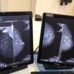 Gjirokastër, nis shërbimi i mamografisë për gratë dhe vajzat në spitalin 'Omer Nishani' (FOTO)